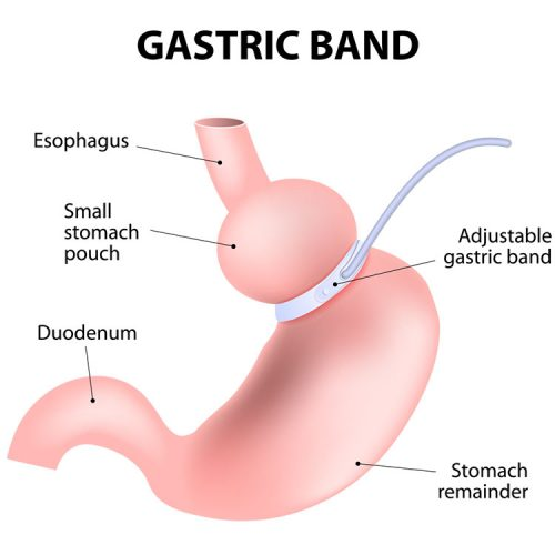 Diagram showing the gastric band